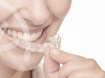 Conheça Invisalign, tecnologia a serviço do seu sorriso