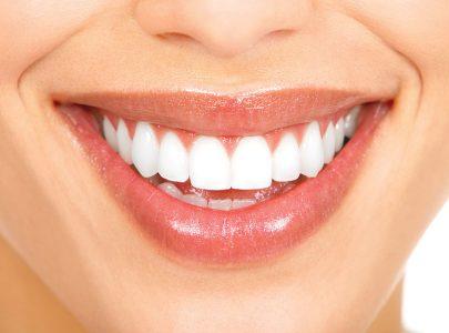 Em busca do sorriso perfeito?